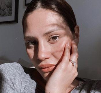 Chi è Beatrice Valli: Biografia, Età, Figli, Marco Fantini e Covid